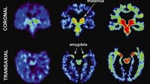 UCLA NFL brain scan