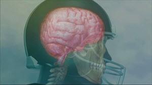 concussion 300 wide